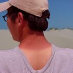 Co platí na spáleniny od sluníčka?