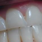 Krvácejí vám dásně? Možná vám chybí vitaminy